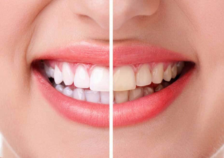 jackson square teeth whitening