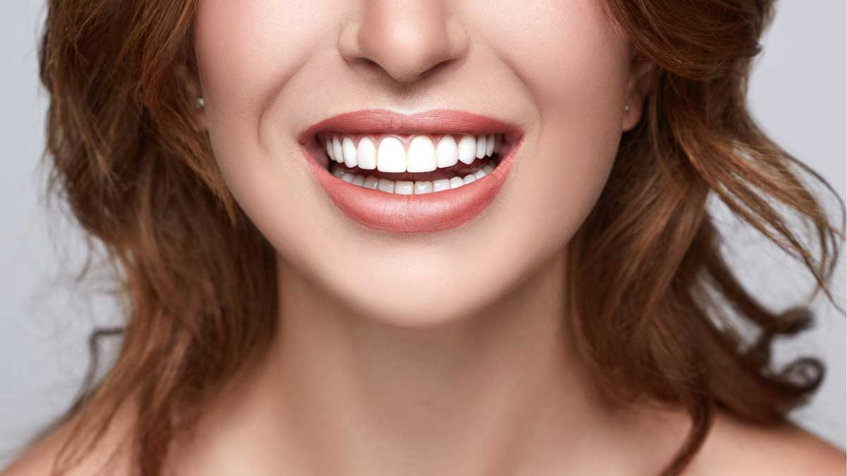 porcelain veneers from martindale dental