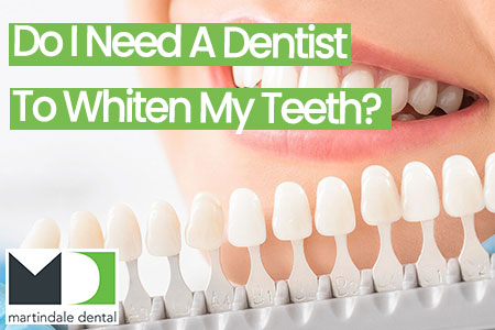 do i need a dentist to whiten my teeth featured image